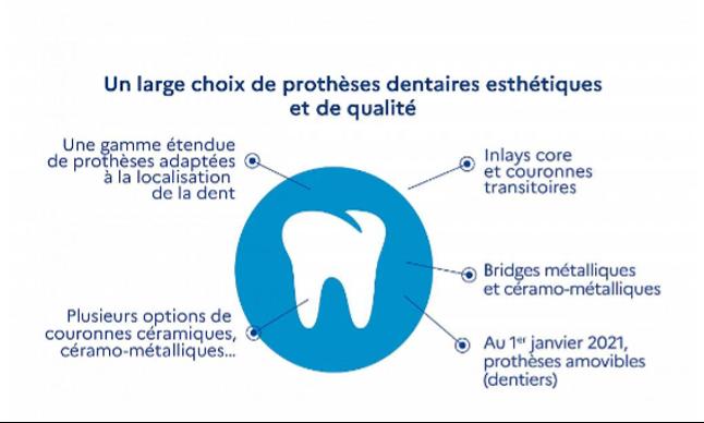 Réforme 100% santé: impact sur l'activité dentaire - Un large choix de prothèse dentaires esthétiques et de qualité