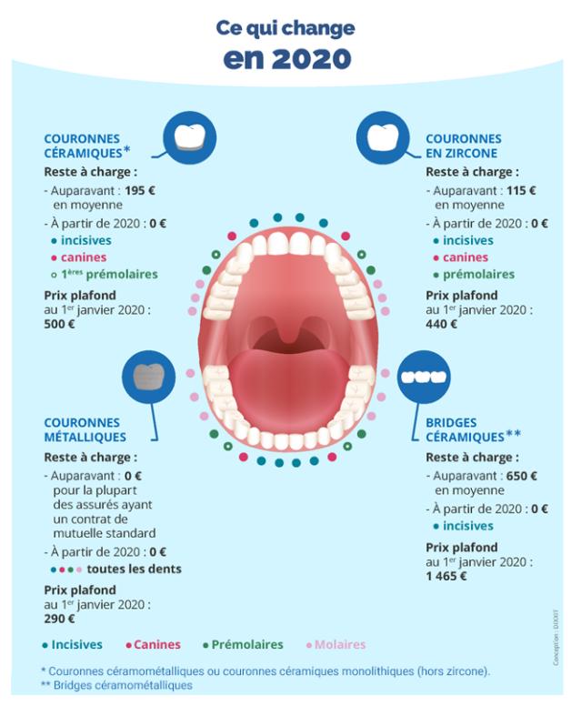 Réforme 100% santé: impact sur l'activité dentaire - ce qui change en 2020